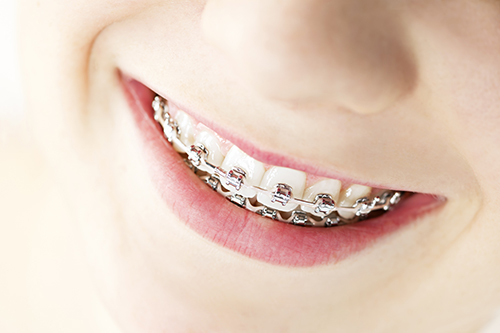 Braces in Boynton Beach