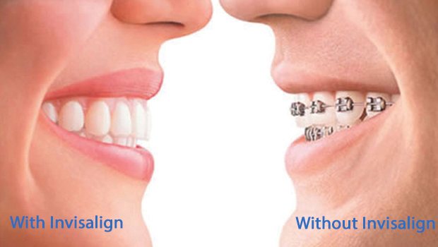 Invisalign in Greenacres