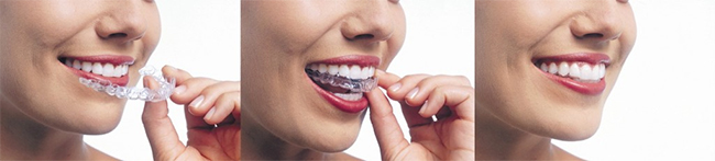 Invisalign in Boynton Beach